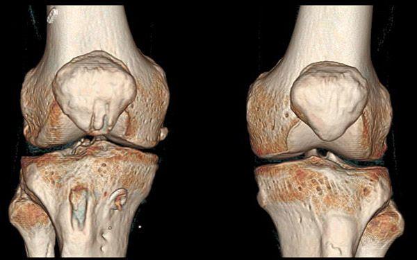 3d визуализация кт коленного сустава