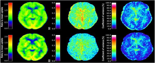 ПЭТ КТ головного мозга с метионином