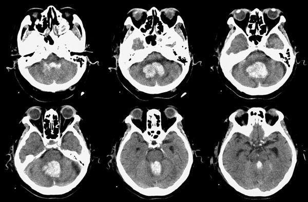 диагностика гематом головного мозга