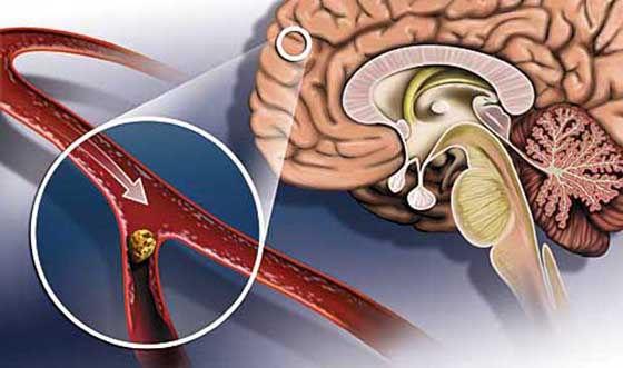 холестериновые бляшки в сосудах головы