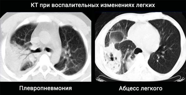 кт при воспалительных изменениях легких