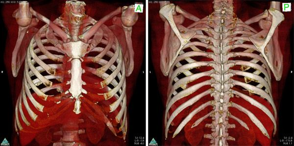 3D визуализация кт грудной клетки
