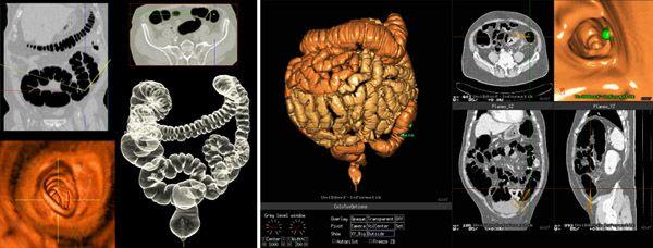 кт снимки кишечника