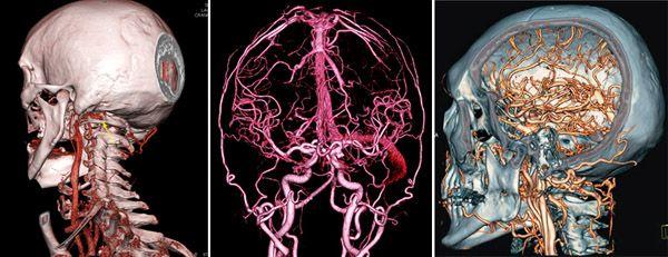 кт снимки сосудов головного мозга и шеи
