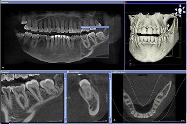 кт снимки зубов