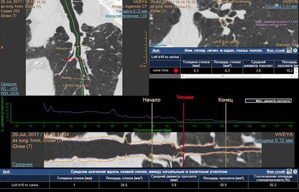мультиспиральная компьютерная томография легких и средостения