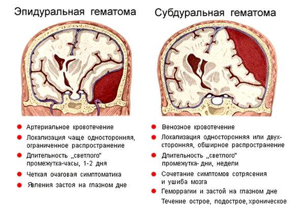 травматические гематомы черепа